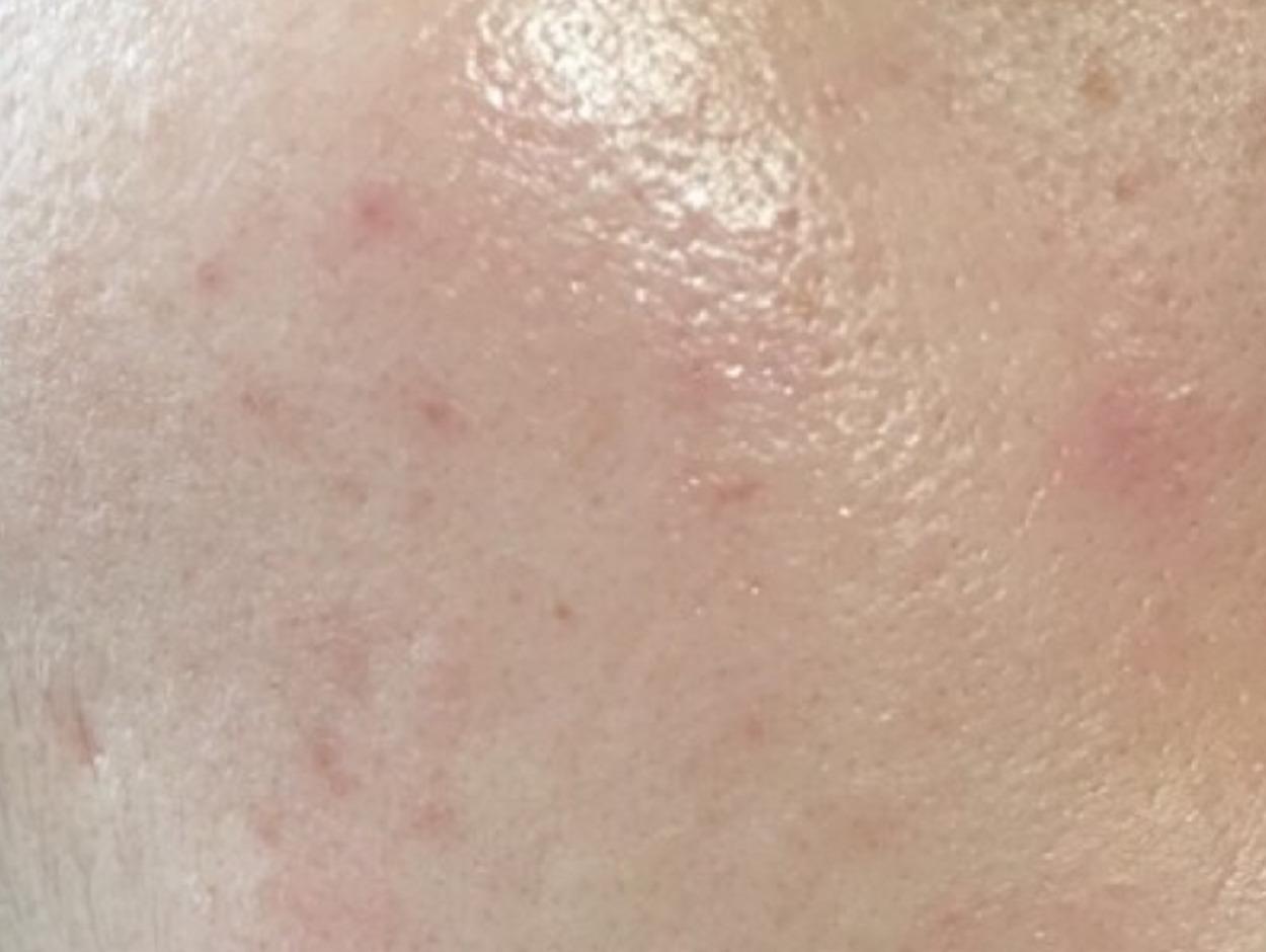 アトピスマイル ビニール肌